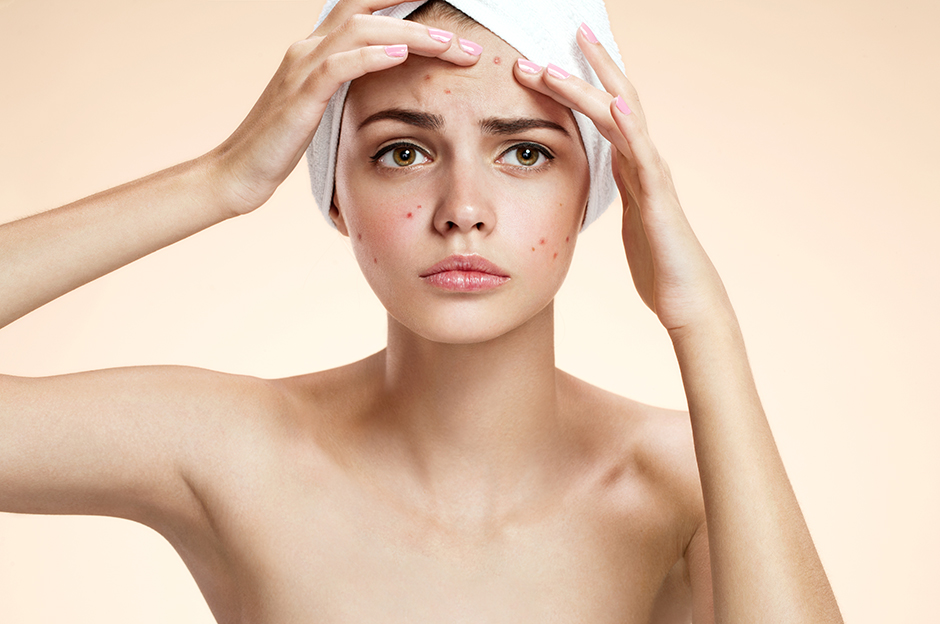 Oily skin adults cause